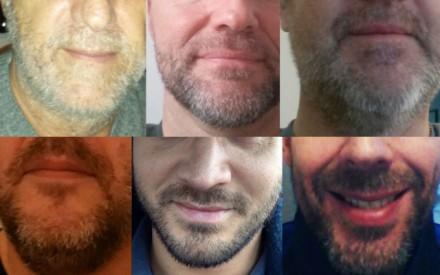 Kriminalkommissariat 11 im Movember Vollbartrausch